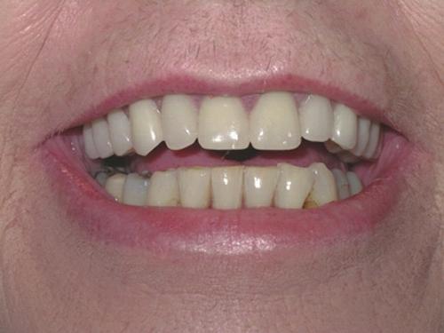 Dentures , Full and partial cosmetic dentures, Sevenoaks Kent